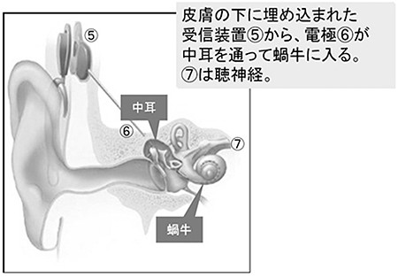 人工内耳のしくみ